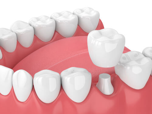 fogászati korona típusok